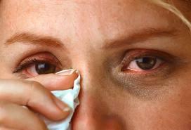 pieczenie oczu, pieczące oko, domowe sposoby naleczenie pieczenia oka, swędzące oczy,